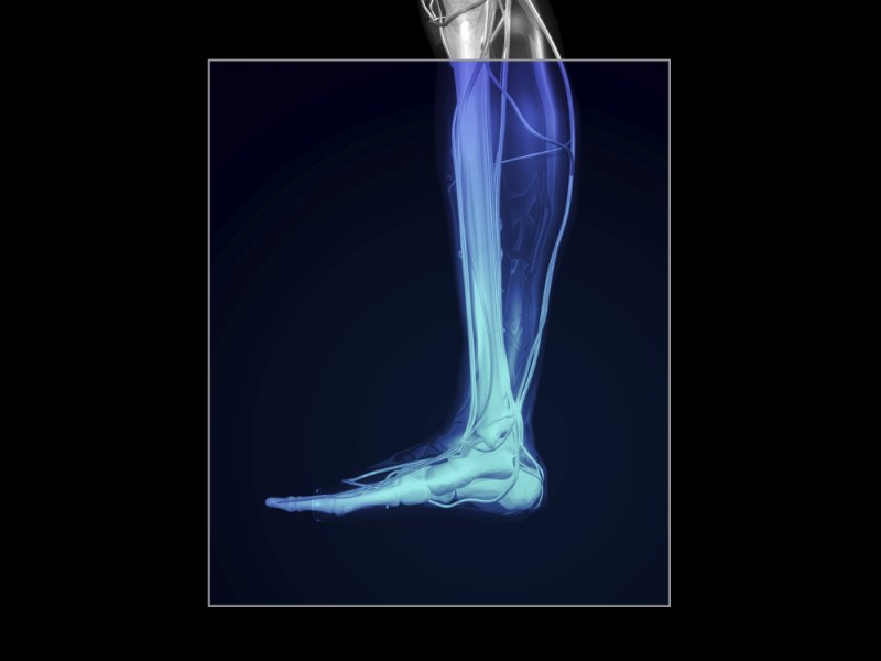 Everything You Need to Know About Shin Splints | Injury/Pain ...